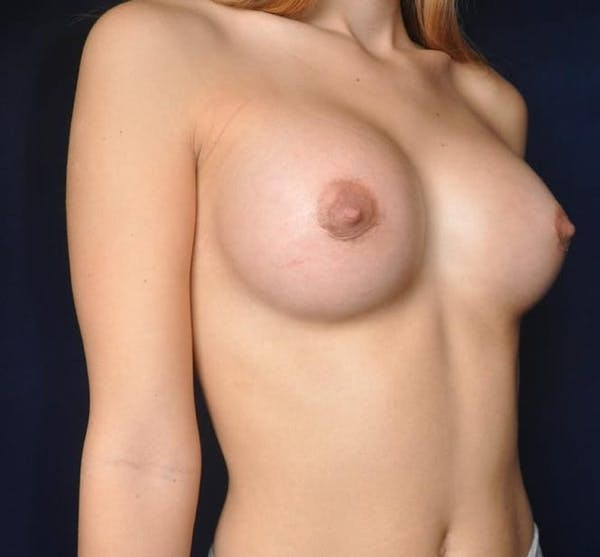 Breast Augmentation Gallery - Patient 13574614 - Image 6