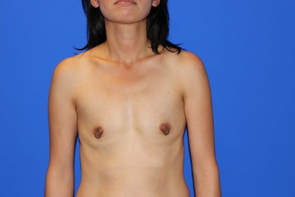 Breast Augmentation Gallery - Patient 13574615 - Image 1