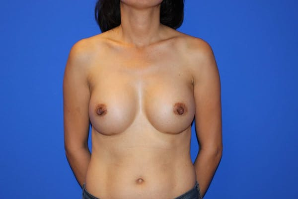 Breast Augmentation Gallery - Patient 13574615 - Image 2