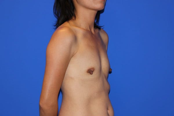 Breast Augmentation Gallery - Patient 13574615 - Image 3
