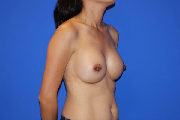 Breast Augmentation Gallery - Patient 13574615 - Image 4