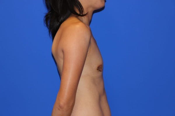 Breast Augmentation Gallery - Patient 13574615 - Image 5