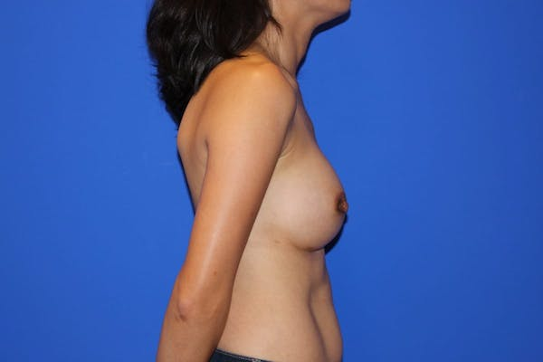 Breast Augmentation Gallery - Patient 13574615 - Image 6