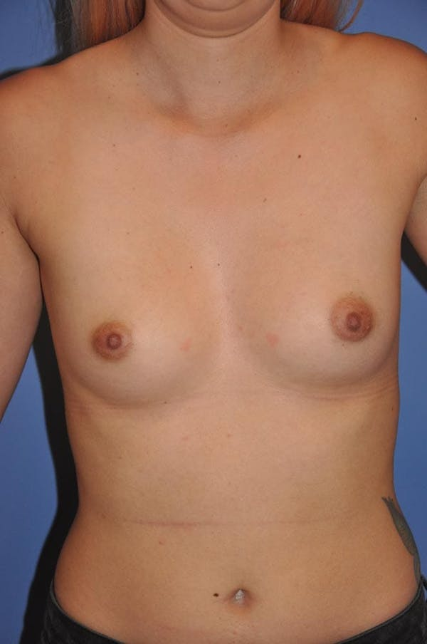 Breast Augmentation Gallery - Patient 13574616 - Image 1