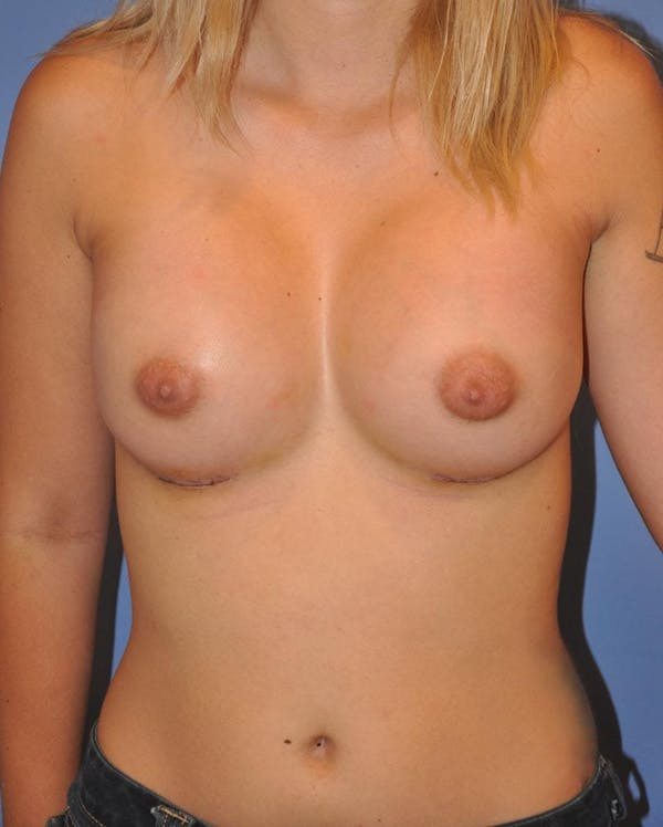 Breast Augmentation Gallery - Patient 13574616 - Image 2
