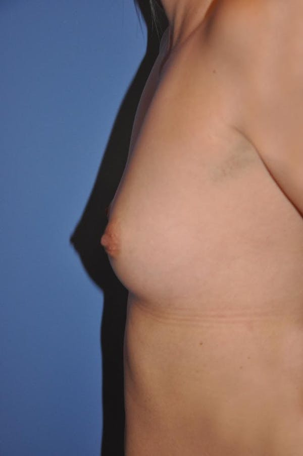 Breast Augmentation Gallery - Patient 13574616 - Image 3