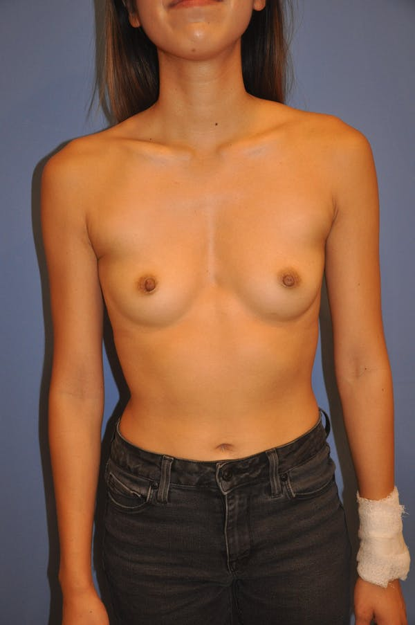 Breast Augmentation Gallery - Patient 13574617 - Image 1