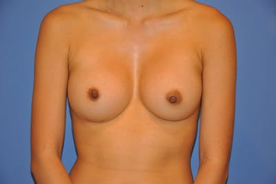 Breast Augmentation Gallery - Patient 13574617 - Image 2