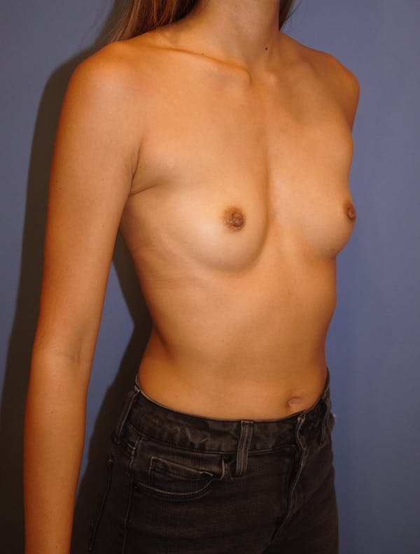 Breast Augmentation Gallery - Patient 13574617 - Image 3