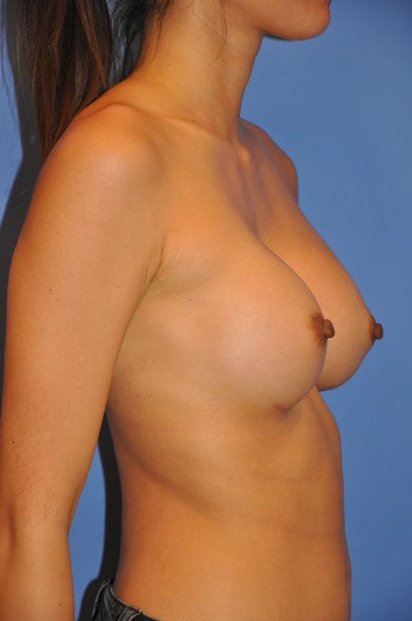 Breast Augmentation Gallery - Patient 13574617 - Image 4