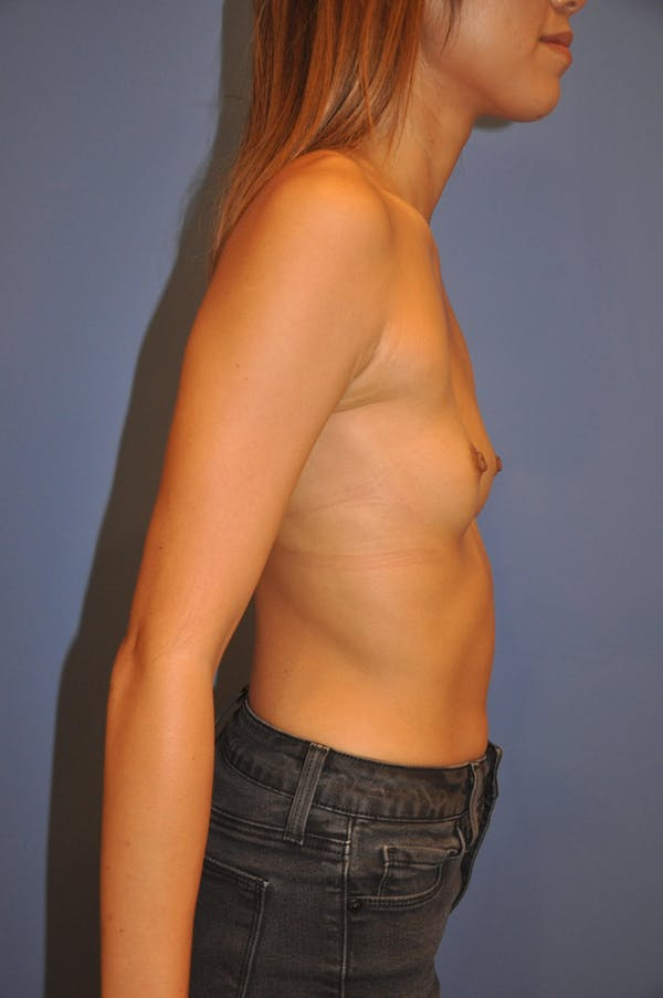 Breast Augmentation Gallery - Patient 13574617 - Image 5