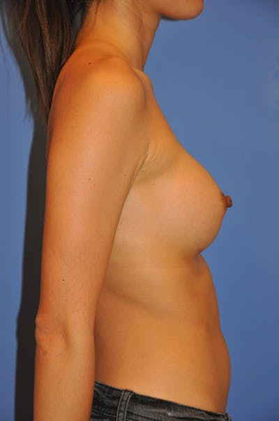Breast Augmentation Gallery - Patient 13574617 - Image 6