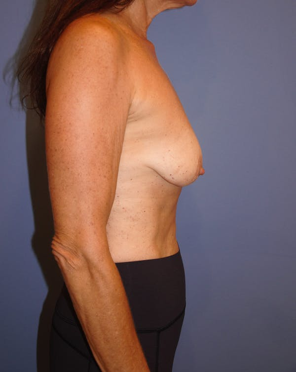 Breast Augmentation Gallery - Patient 13574618 - Image 3