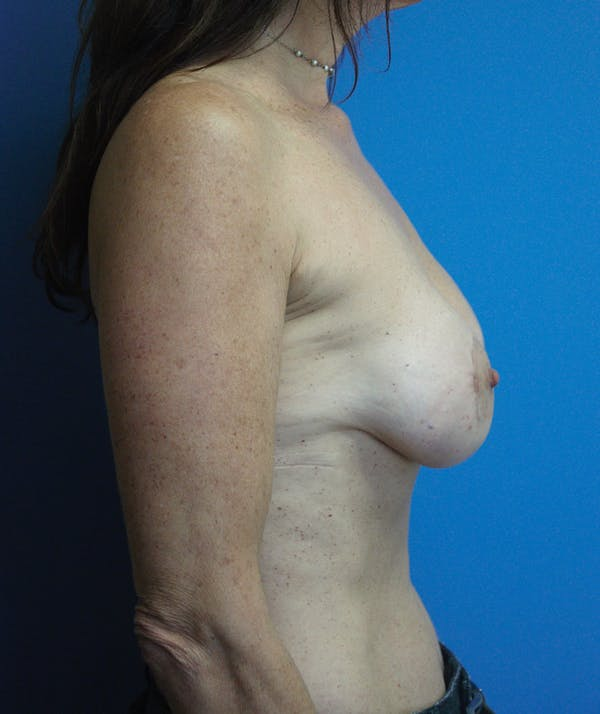 Breast Augmentation Gallery - Patient 13574618 - Image 4