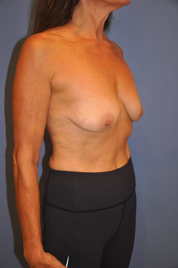 Breast Augmentation Gallery - Patient 13574618 - Image 5