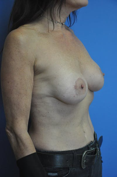Breast Augmentation Gallery - Patient 13574618 - Image 6