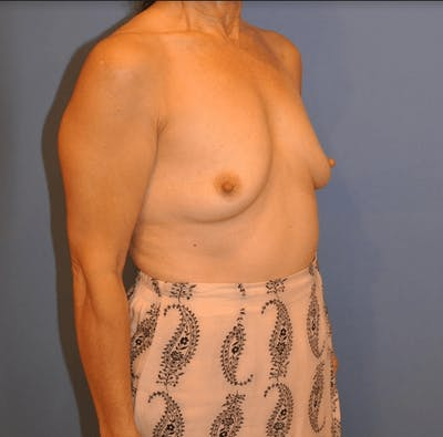 Breast Augmentation Gallery - Patient 13574621 - Image 1