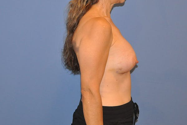 Breast Augmentation Gallery - Patient 13574621 - Image 2