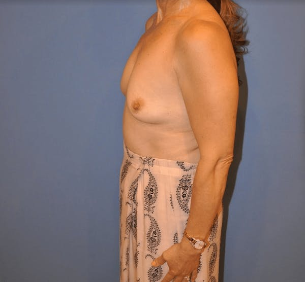 Breast Augmentation Gallery - Patient 13574621 - Image 3