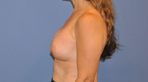 Breast Augmentation Gallery - Patient 13574621 - Image 4