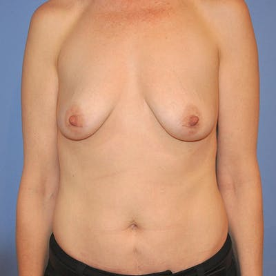 Breast Augmentation Gallery - Patient 13574624 - Image 1