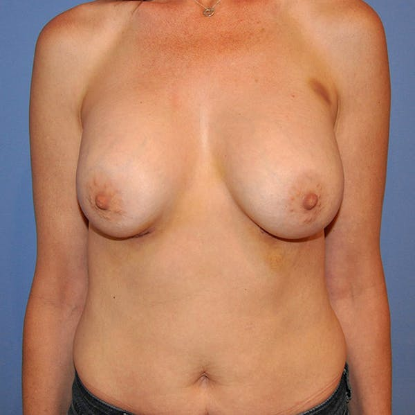 Breast Augmentation Gallery - Patient 13574624 - Image 2