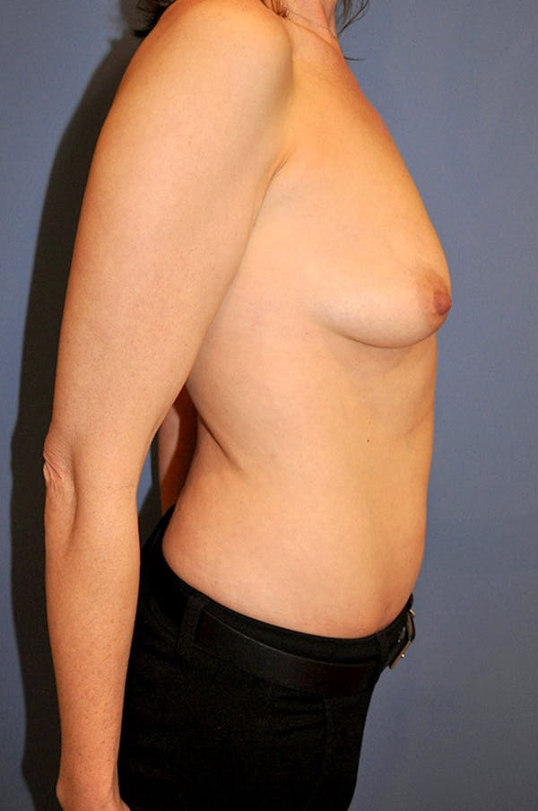 Breast Augmentation Gallery - Patient 13574624 - Image 3