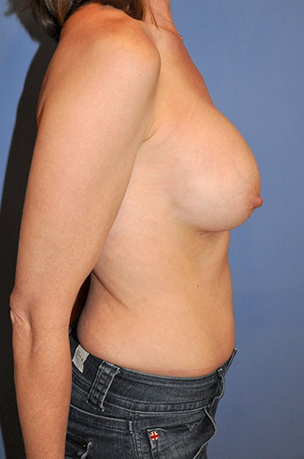 Breast Augmentation Gallery - Patient 13574624 - Image 4