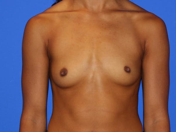 Breast Augmentation Gallery - Patient 13574627 - Image 1