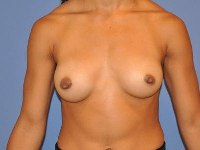 Breast Augmentation Gallery - Patient 13574627 - Image 2