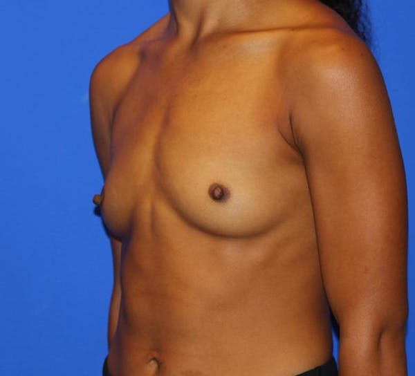 Breast Augmentation Gallery - Patient 13574627 - Image 3