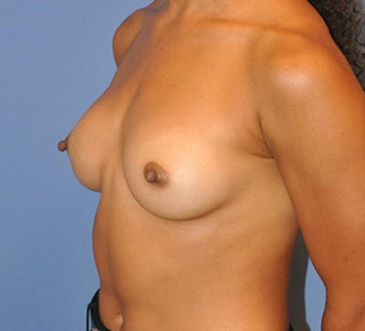 Breast Augmentation Gallery - Patient 13574627 - Image 4