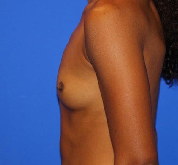 Breast Augmentation Gallery - Patient 13574627 - Image 5
