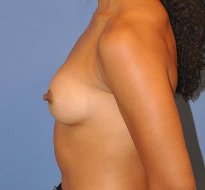 Breast Augmentation Gallery - Patient 13574627 - Image 6
