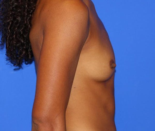 Breast Augmentation Gallery - Patient 13574627 - Image 7