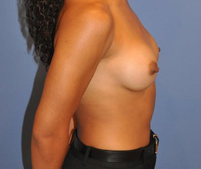 Breast Augmentation Gallery - Patient 13574627 - Image 8