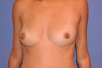 Breast Augmentation Gallery - Patient 13574629 - Image 1