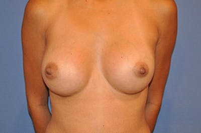 Breast Augmentation Gallery - Patient 13574629 - Image 2