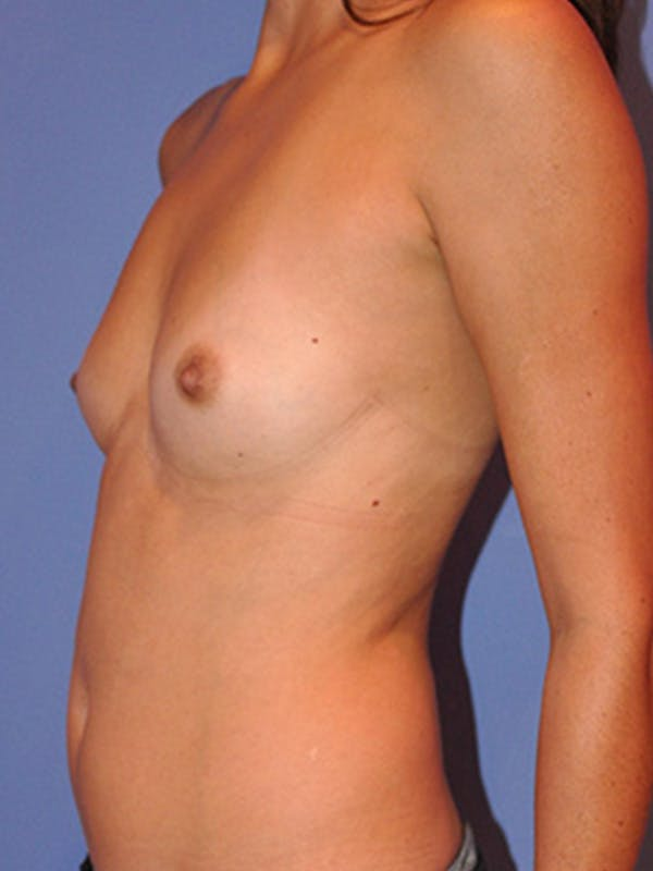 Breast Augmentation Gallery - Patient 13574629 - Image 3