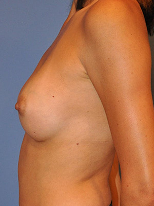 Breast Augmentation Gallery - Patient 13574629 - Image 4