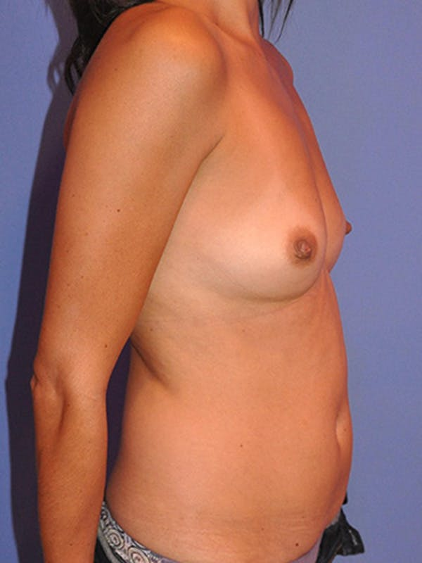 Breast Augmentation Gallery - Patient 13574629 - Image 5