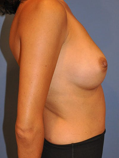 Breast Augmentation Gallery - Patient 13574629 - Image 6