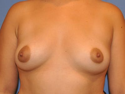 Breast Augmentation Gallery - Patient 13574630 - Image 1