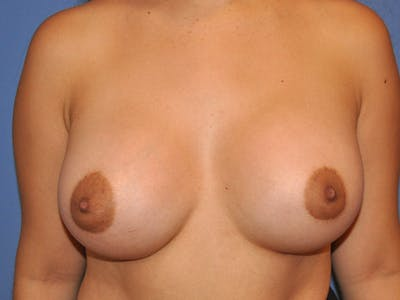 Breast Augmentation Gallery - Patient 13574630 - Image 2