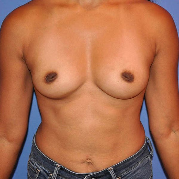 Breast Augmentation Gallery - Patient 13574631 - Image 1