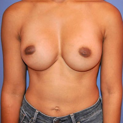 Breast Augmentation Gallery - Patient 13574631 - Image 2