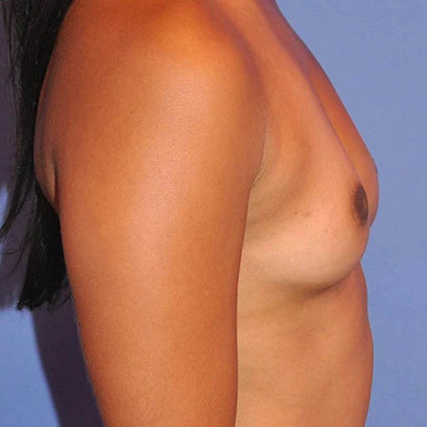 Breast Augmentation Gallery - Patient 13574631 - Image 3