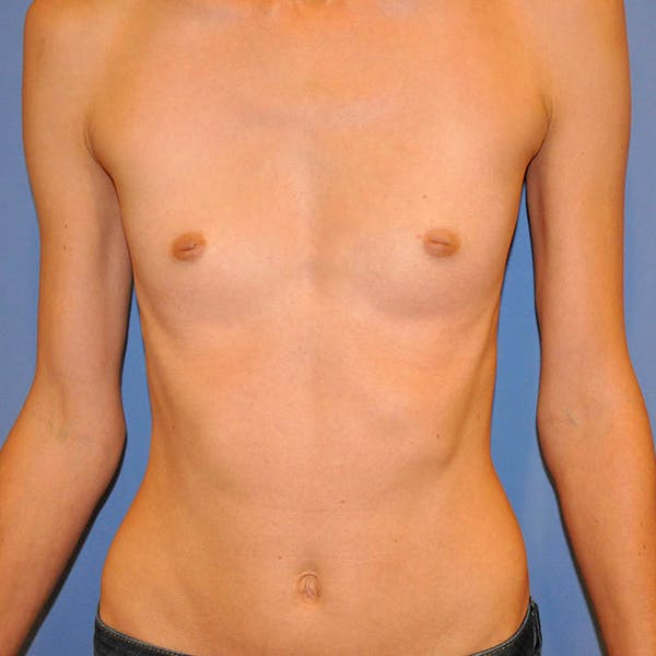 Breast Augmentation Gallery - Patient 13574632 - Image 1