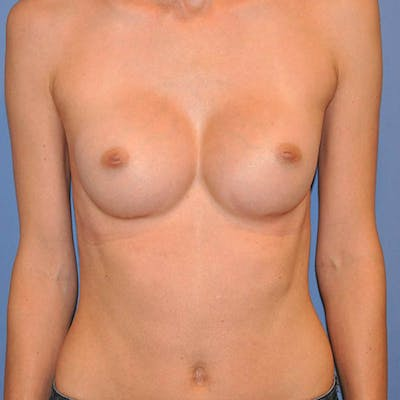 Breast Augmentation Gallery - Patient 13574632 - Image 2