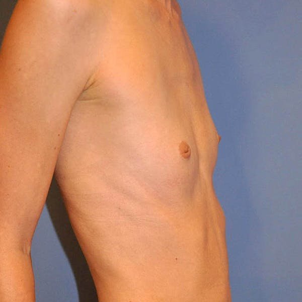 Breast Augmentation Gallery - Patient 13574632 - Image 3